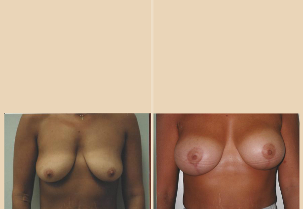 Breast Lift - Case 26 Front