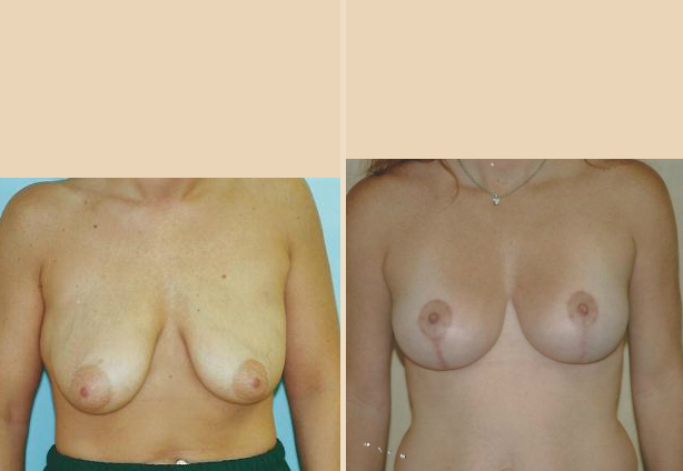 Breast Lift - Case 27 Front