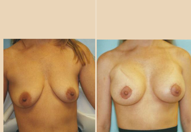 Breast Lift - Case 29 Front