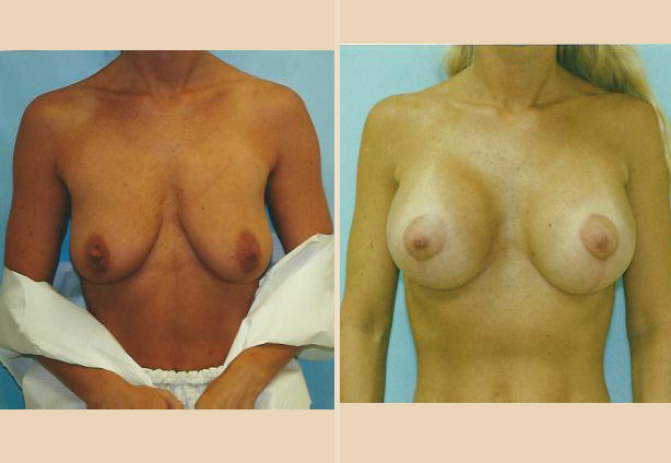 Breast Lift - Case 3 Front