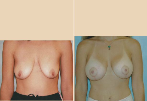 Breast Lift - Case 30 Front
