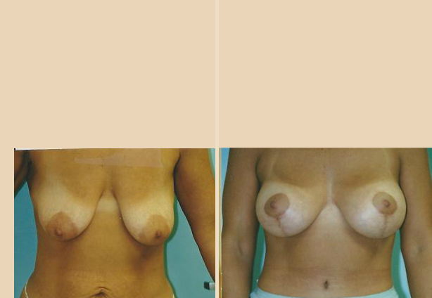 Breast Lift - Case 31 Front
