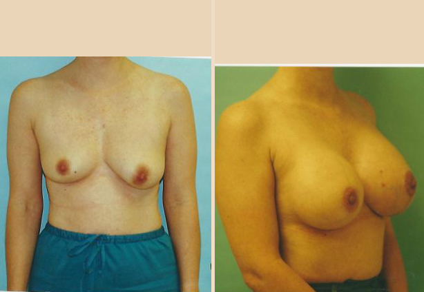 Breast Lift - Case 32 Front