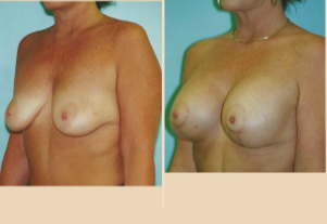 Breast Lift - Case 34 Oblique