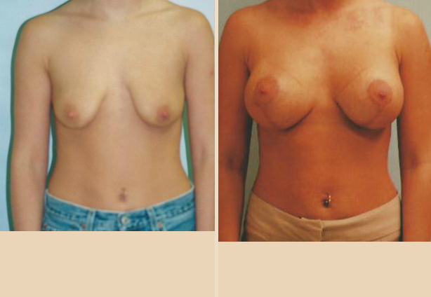 Breast Lift - Case 35 Front Oblique