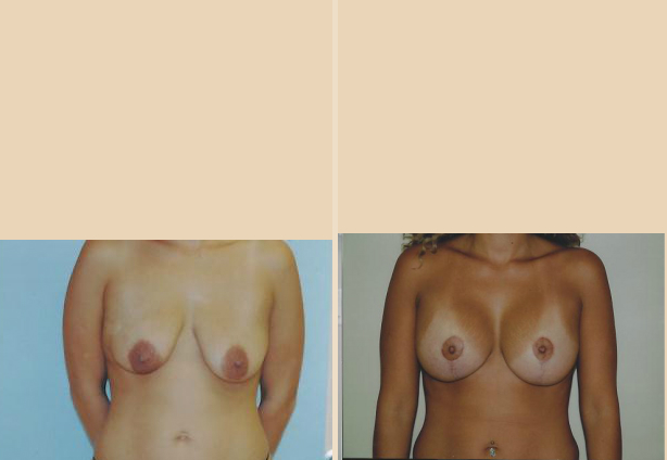 Breast Lift - Case 4 Front