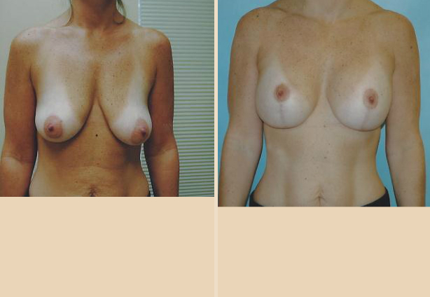 Breast Lift - Case 5 Front