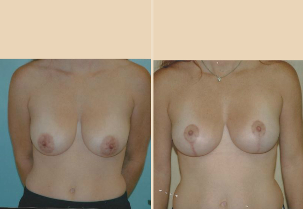 Breast Lift - Case 6 Front