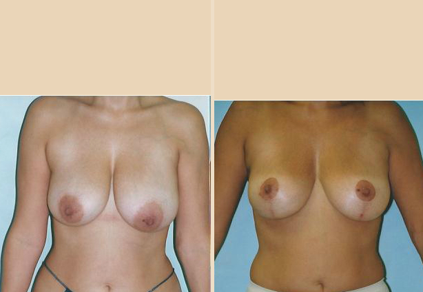 Breast lift - Case 7 Front