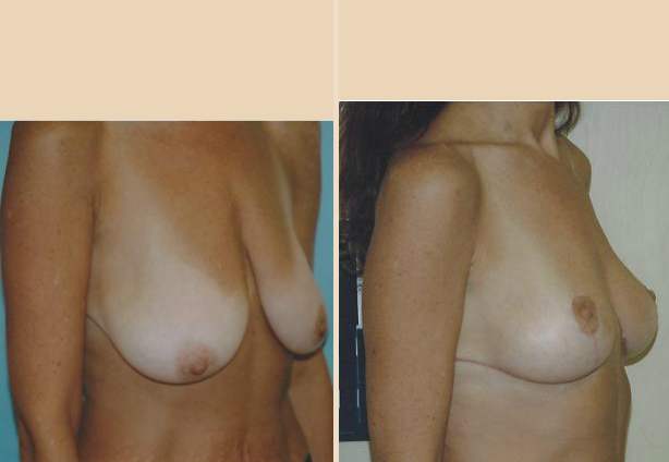Breast lift - Case 8 Oblique