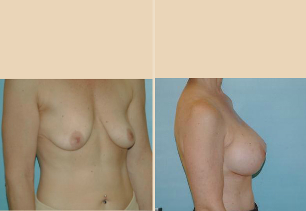Breast Lift - Case 9 Oblique