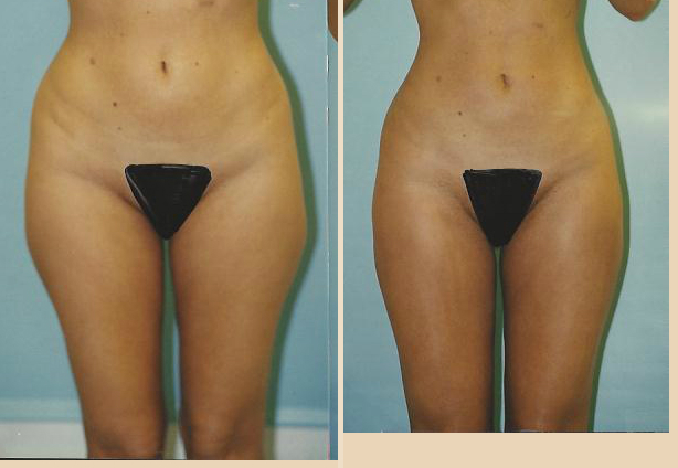 Liposuction - Case 3 Front