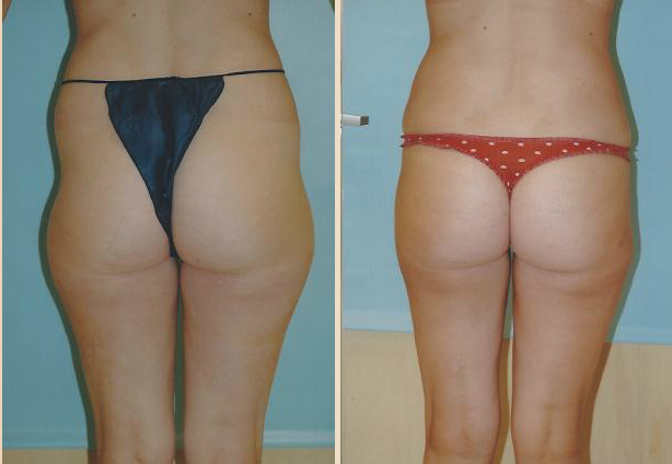 Liposuction - Case 4 Back