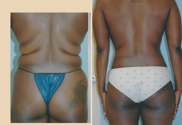 Liposuction - Case 6 Back