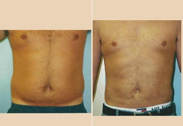Liposuction - Case 7 Front