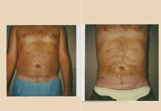 Liposuction - Case 8 Front