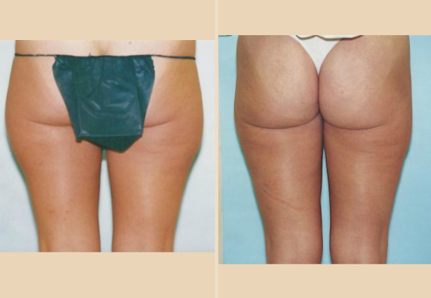 Liposuction - Case 9 Back