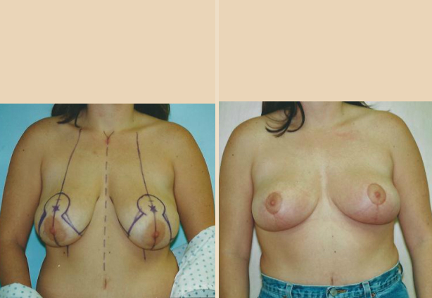 Breast Reduction - Case 1 Front
