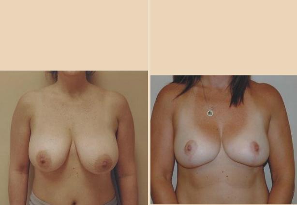 Breast Reduction - Case 2 Front Oblique