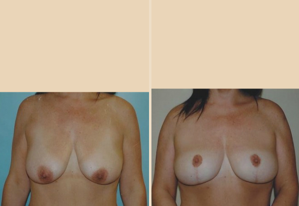 Breast Reduction - Case 3 Front Side