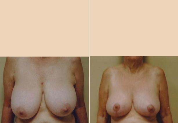 Breast Reduction - Case 4 Front Oblique