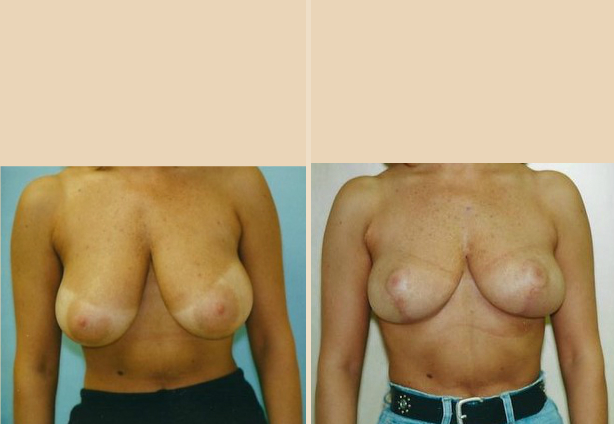 Breast Reduction - Case 5 Front Side