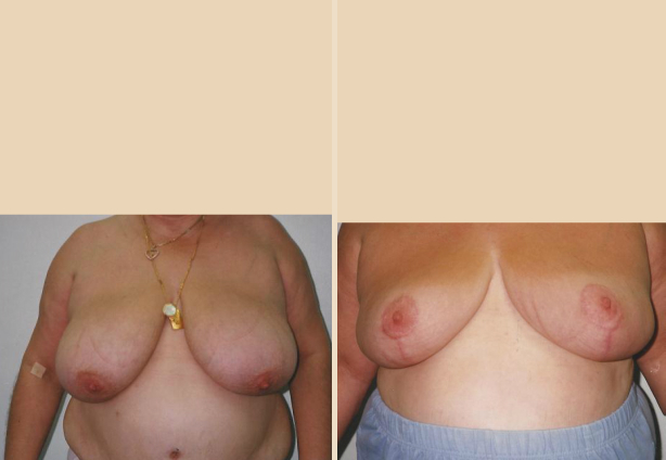 Breast Reduction - Case 6 Front Side