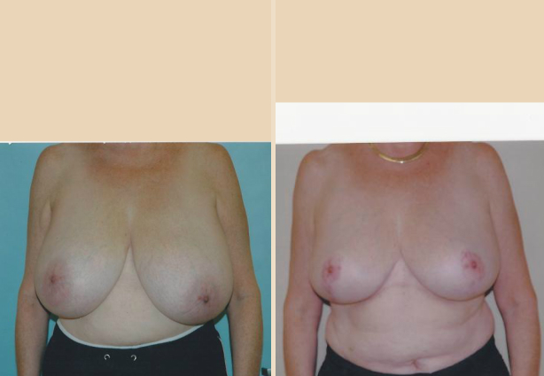 Breast Reduction - Case 7 Front Side