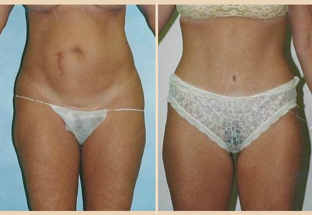 Tummy Tuck - Case 1 Front Oblique