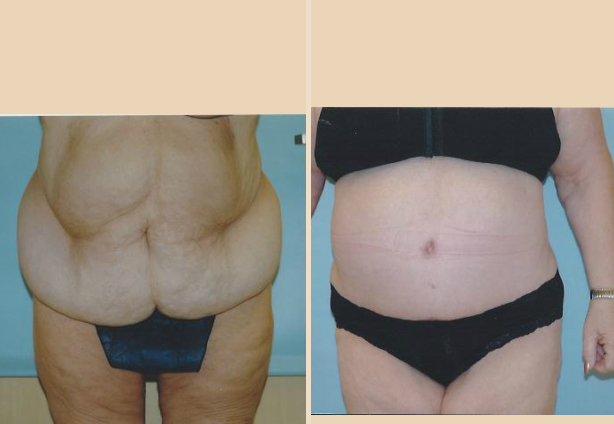 Tummy Tuck - Case 10 Front