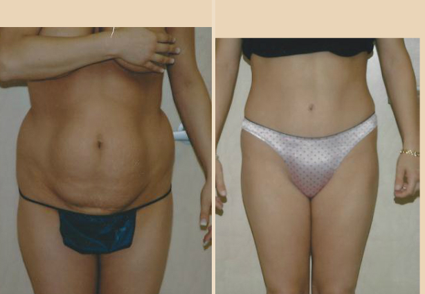 Tummy Tuck - Case 13 Front