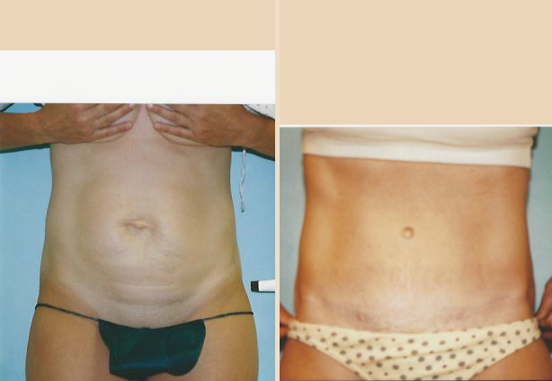 Tummy Tuck - Case 14 Front