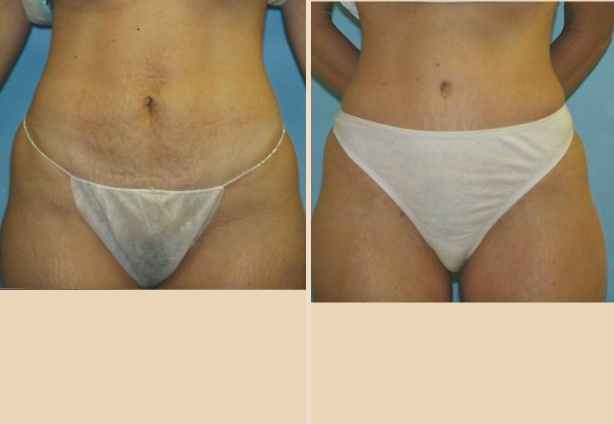 Tummy Tuck - Case 17 Front