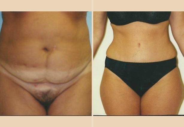 Tummy Tuck - Case 2 Front Side