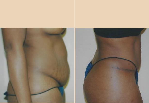 Tummy Tuck - Case 22 Side