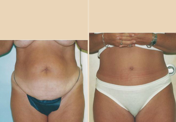 Tummy Tuck - Case 23 Front