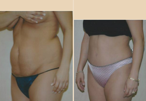Tummy Tuck - Case 24 Front Side