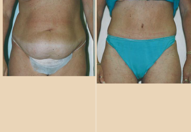 Tummy Tuck - Case 26 Front
