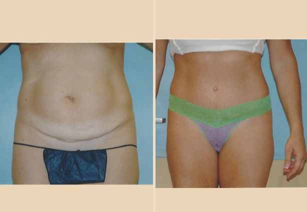 Tummy Tuck - Case 29 Front Side
