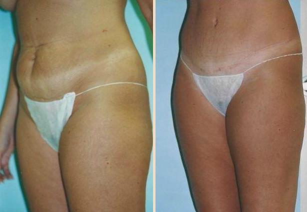Tummy Tuck - Case 3 Oblique Side