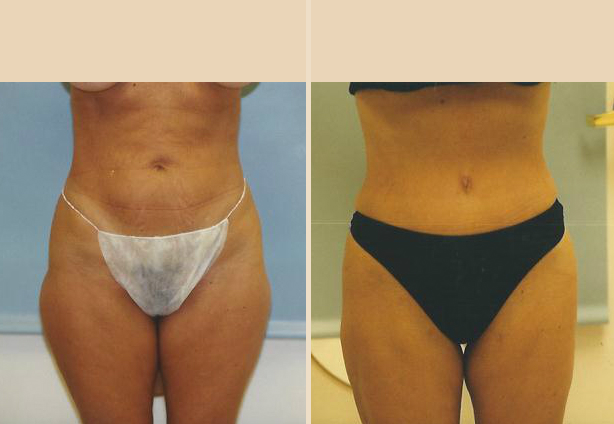 Tummy Tuck - Case 30 Front