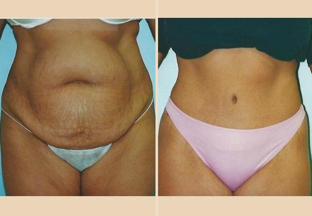 Tummy Tuck - Case 4 Front Oblique