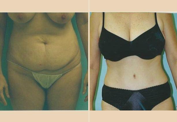 Tummy Tuck - Case 6 Front Oblique