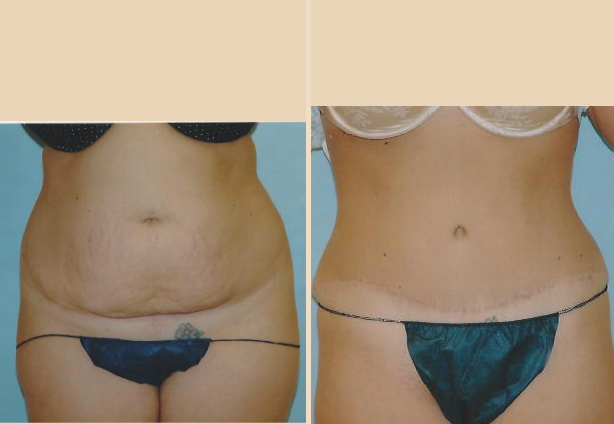 Tummy Tuck - Case 7 Front