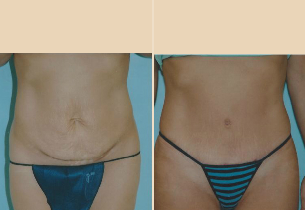 Tummy Tuck - Case 8 Front