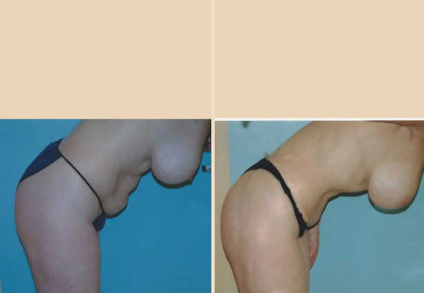 Tummy Tuck - Case 9 Front