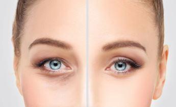 Eyelid Surgery | Brow Lift | Face Lift | Rhinoplasty | Ear Surgery